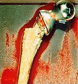 Инфекция после имплантации тазобедренного сустава
