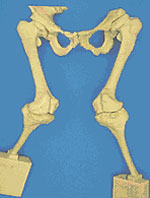 3-х мерная модель коленных суставов