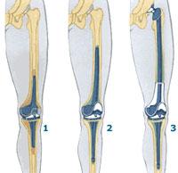 Повторное протезирование коленного сустава - ЭНДО-Клиника – Гамбург