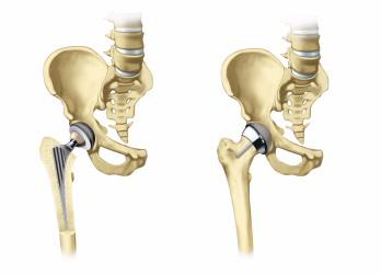 Искусственный тазобедренный сустав - Современные протезы тазобедренного сустава